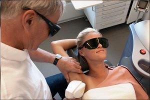 Permanent hårfjerning i armhulen med diode laser
